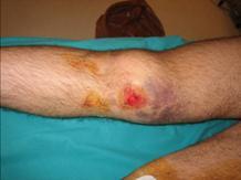 lesion muscular por golpe