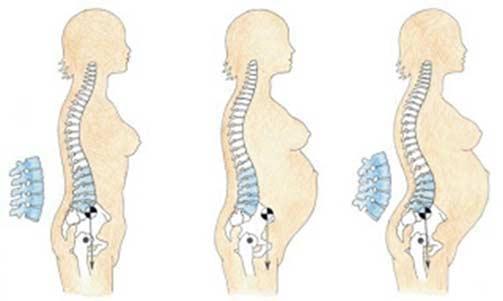 Hidroterapia durante el embarazo, ¿beneficioso o perjudicial?