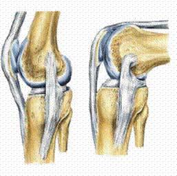 principii de tratament al artrozei deformante
