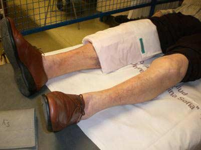 tratamentul cu artroză a medicamentului tibetan