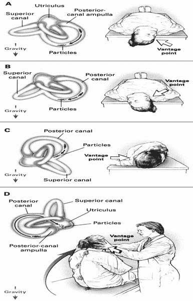 Tratamiento de vértigo fisio