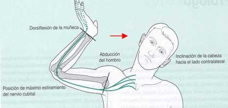 Estiramiento nervio ciatico