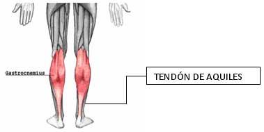 posibles lesiones de talon