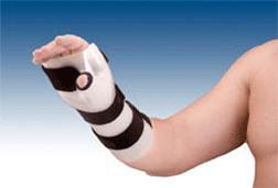 artritis jovial fisioterapia