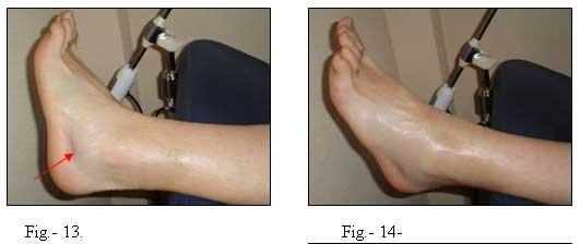 significado torcedura pie izquierdo
