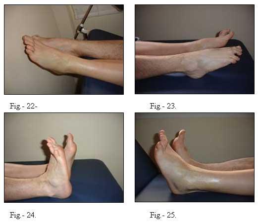 hinchazon inflamacion y hematoma del tobillo
