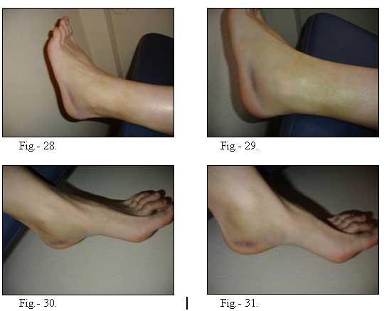Pies y piernas hinchados dificultad para respirar