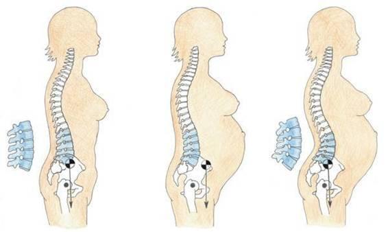 Cambios musculoesqueléticos durante el embarazo - KineFaSe