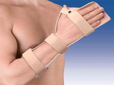 Inflamacion tendones flexores mano