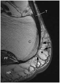 Comparación de la efectividad del tratamiento con  movilización y técnicas de energia muscular de la articulación calcaneocuboidea, frente al tratamiento con ondas de choque extracorporeas, en la fascitis plantar