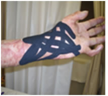 Aplicación de Vendaje Neuromuscular en Paciente Quemado: Estudio de Una Caso
