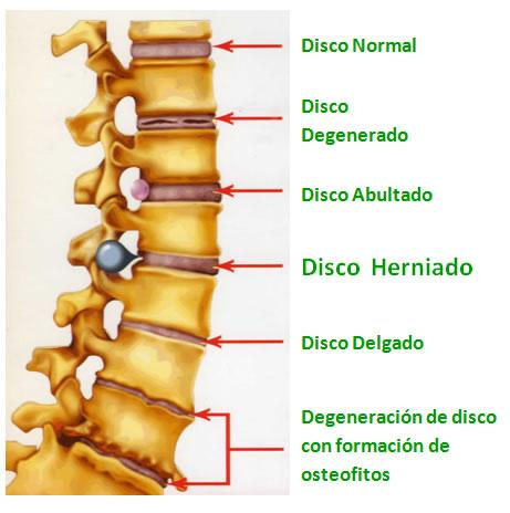Sintomas nervio ciatico inflamado