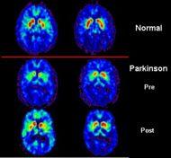Tratamiento interdisciplinar de la enfermedad de parkinson