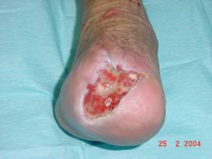 Tens cicatricial en úlceras diabéticas