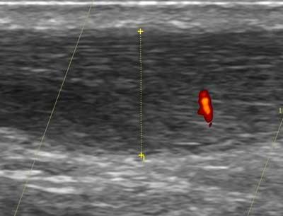 Tendinopatía de aquiles en un futbolista de de la lfp. Tratamiento acelerado mediante electrólisis percutánea intratisular (EPI®) ecoguiada