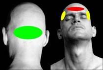 Valoración de un dolor de cabeza cervicogénico con el Método McKenzie: caso clínico