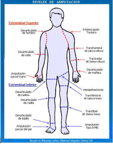 Programa de ejercicios para el manejo de pacientes amputados trastabilles pre-protésicos y manejo de dolor fantasma