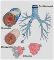 Propuesta de abordaje fisioterapico para enfermedades respiratorias obstructivas.