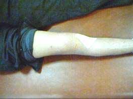 Rehabilitación de plastia de ligamento cruzado anterior