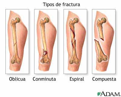 Que diferencia hay entre una fisura y una fractura