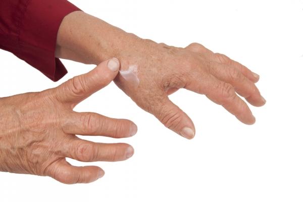 pacientes con artritis reumatoide articulo