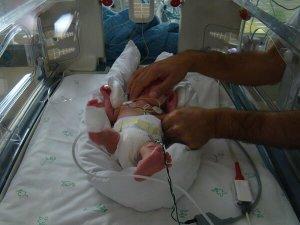 Dolor en los recién nacidos