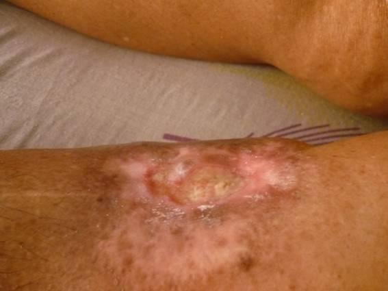 Paciente con ulcera arterial tratada con drenaje linfatico manual