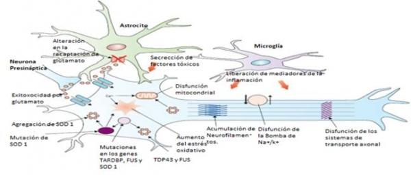 Evaluación neurofisiológica de la afectación de motoneurona superior y del tratamiento rehabilitador en la evolución de la esclerosis lateral amiotrófica