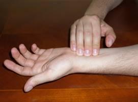 Recomendaciones para el paciente - Síndrome del tunel carpiano.