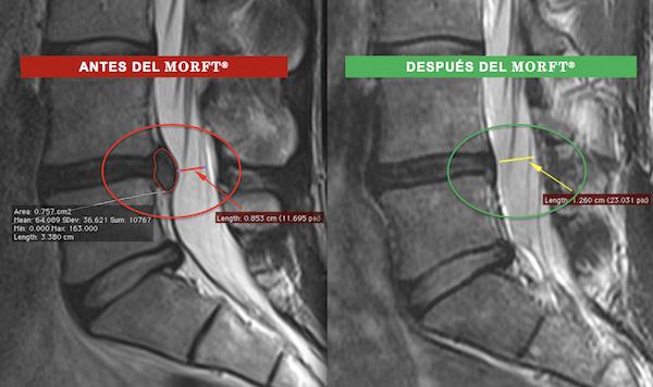 CURSO PEDEP 27 del MORFT® para la Recuperación Funcional, con Regresión Activa, de la Hernia y Protrusión Discal Lumbar - Sin Cirugía