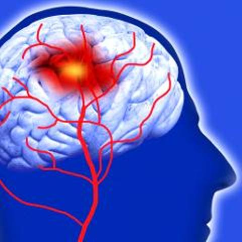 Fisioterapia en el Accidente Vascular Cerebral (AVC)