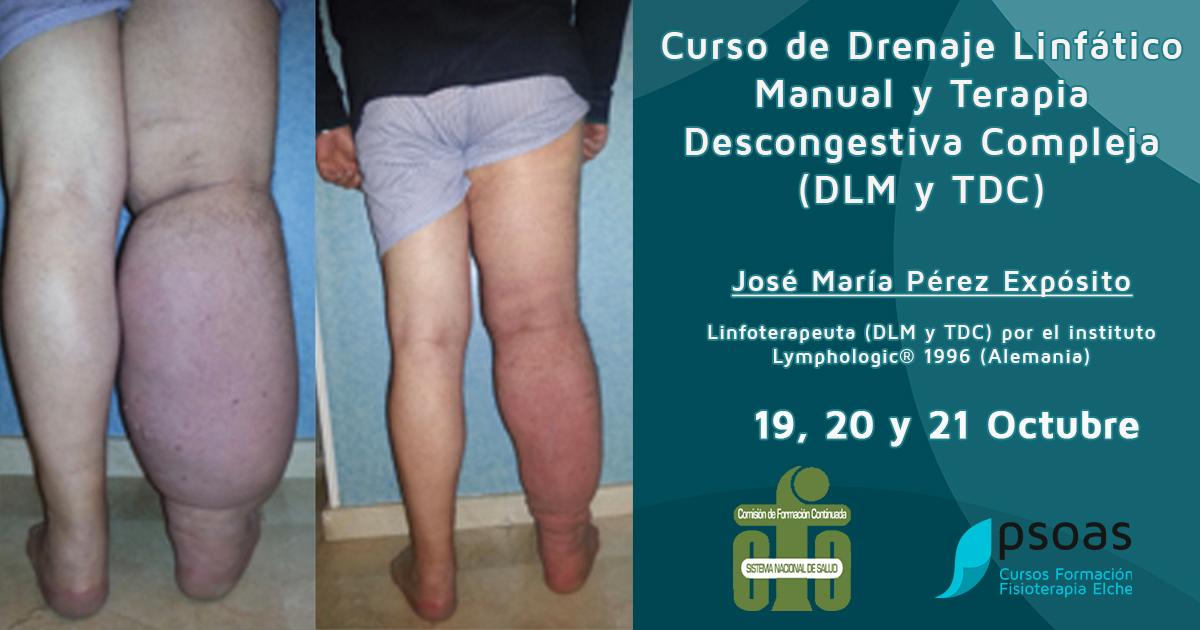 Curso de Drenaje Linfático para Fisioterapeutas (DLM y TDC)