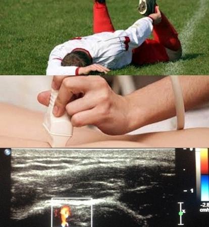 Introducción a la ecografía musculoesquelética