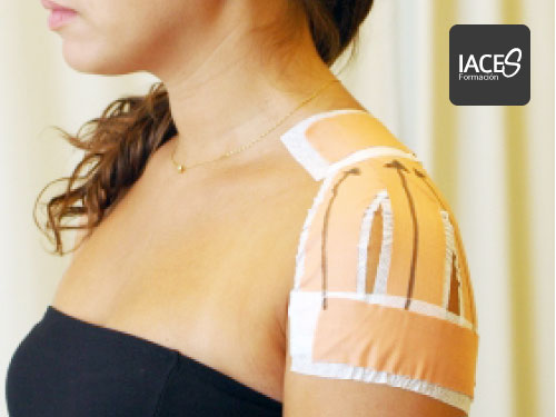 McConnell Institute para problemas de hombro