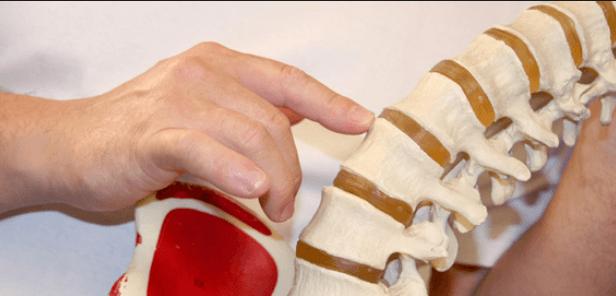 Método Mezieres: Fisioterapia Global Miofascial
