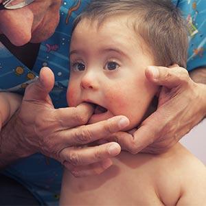 Pediatría: Reeducación Orofacial (PED-ATM)