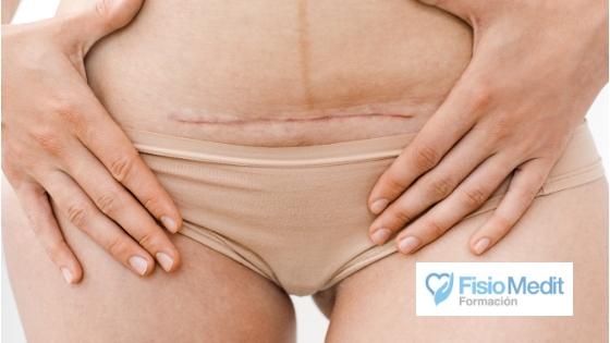Tratamiento de las cicatrices y su evidencia científica