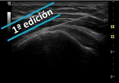 Procedimientos Invasivos ecoguiados en Fisioterapia - ¡NUEVO! - 1ª EDICIÓN
