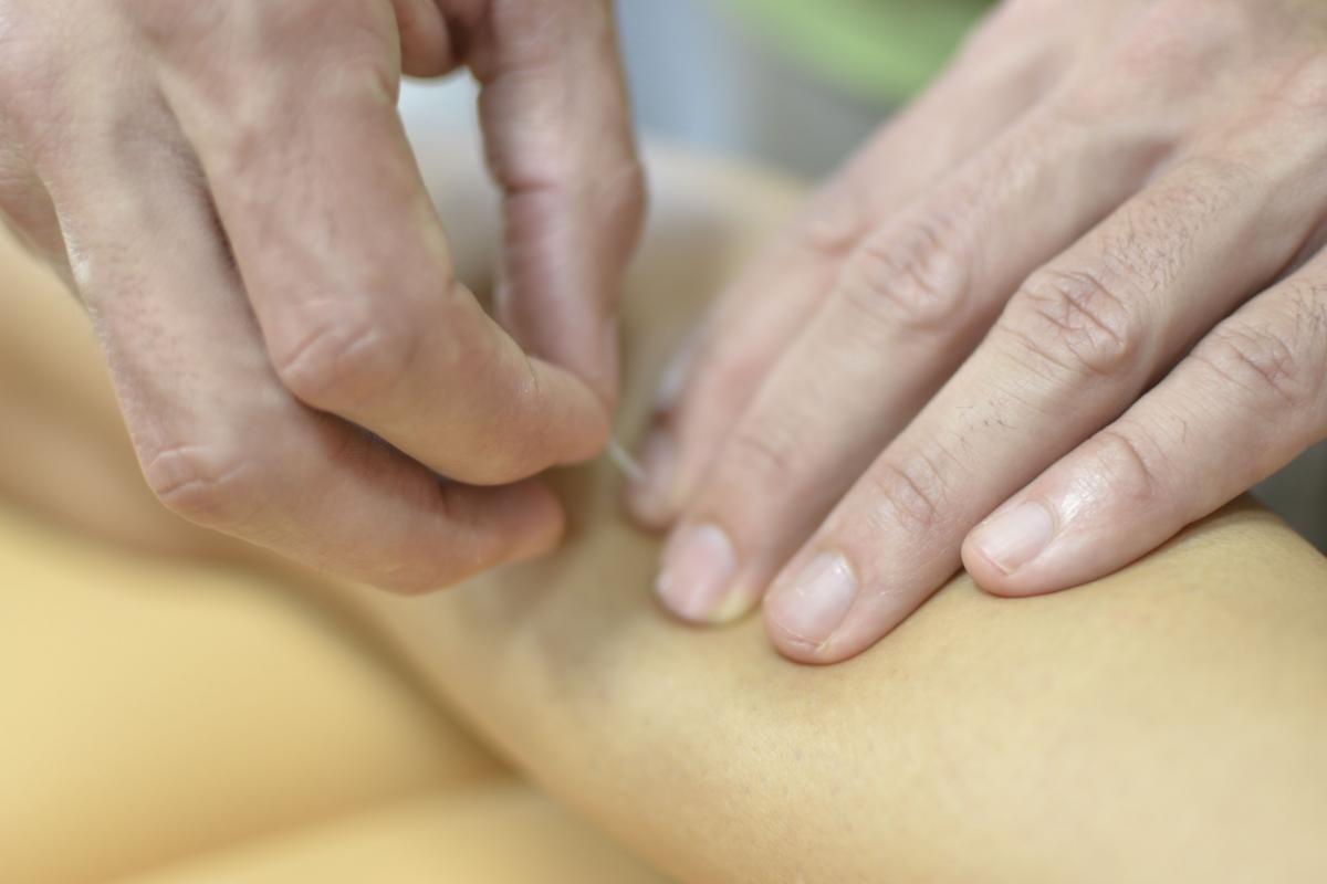 Síndrome del dolor miofascial. Tratamiento conservador e invasivo de los puntos gatillo miofasciales- Bilbao