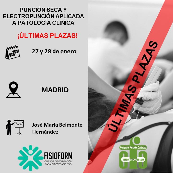 Curso punción seca y electropunción aplicada a patología clínica (Madrid) Enero