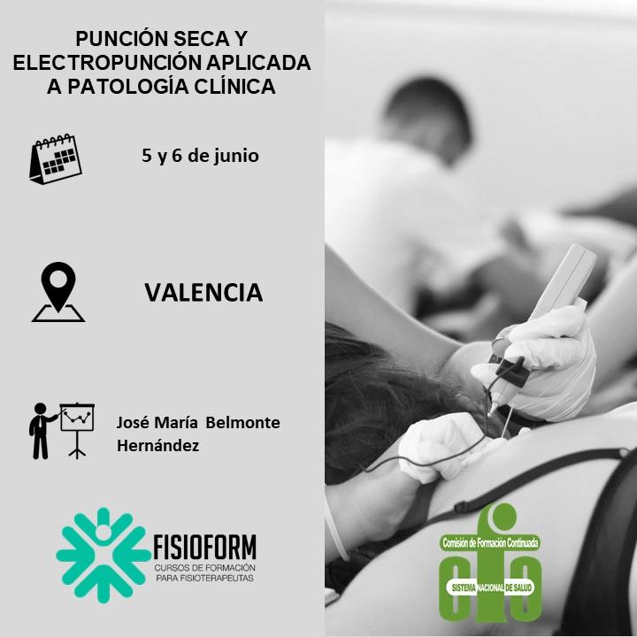 Curso punción seca y electropunción aplicada a patología clínica (Valencia)