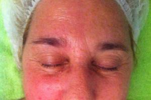 Fisioterapia estética: miorregeneración facial