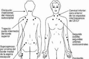 Fibromialgia reumatología