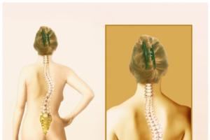 Escoliosis: ¿enfermedad de la columna o adaptación del cuerpo?
