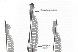 TRATAMIENTO OSTEOPATICO DEL RAQUIS PARA FISIOTERAPEUTAS