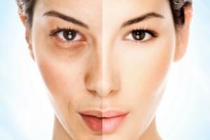 Fisioterapia Dermatofuncional - Nuevas tecnologías