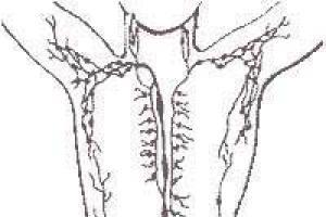 Linfosur