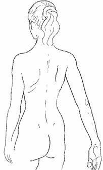 La disfunción fascial y su reflejo postural