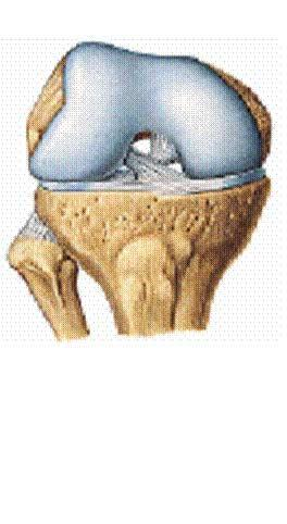 Tratamiento fisioterápico de la artrosis de rodilla