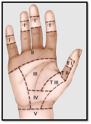 Lesiones de tendones flexores de mano